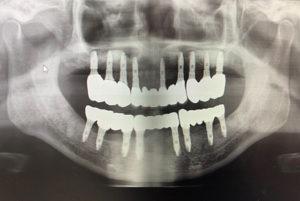 全顎インプラントのレントゲン写真